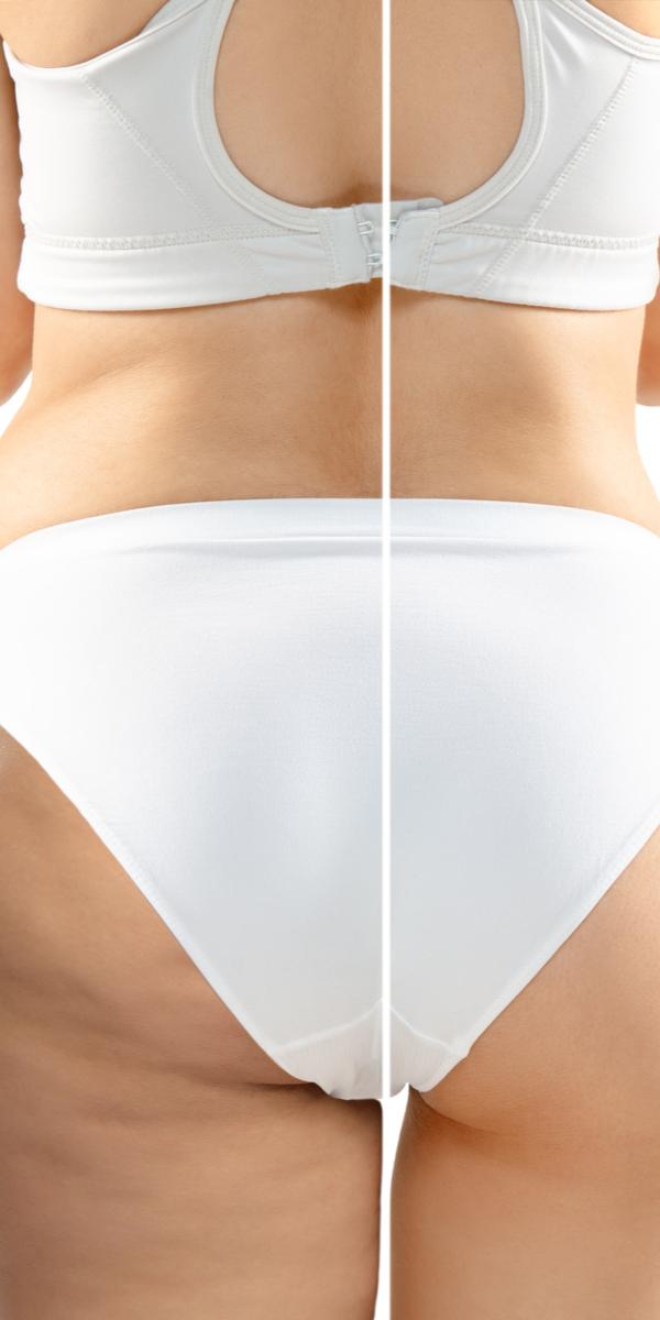 Fettabsaugung - Liposuction